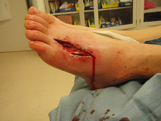 Conrad Stoltz's Cut Foot